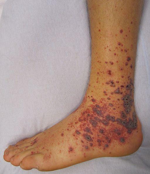 Petechien bei vasculitis