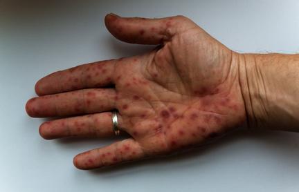 Scharlach Infektion